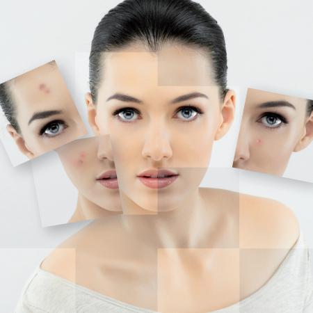 Psoriasi - Dermatite