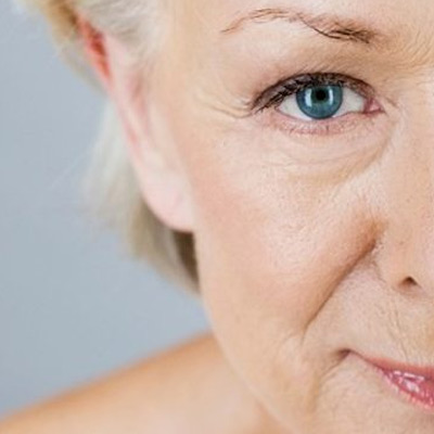 Collagene colloidale contrasta la formazione delle rughe
